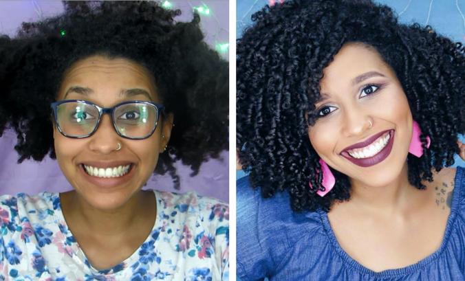 Falsa caspa: saiba como evitar no cabelo cacheado e crespo